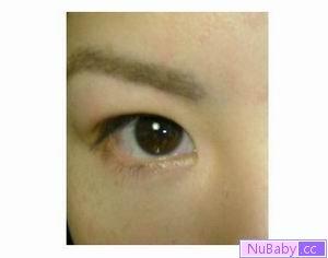 神奇的雙眼皮貼