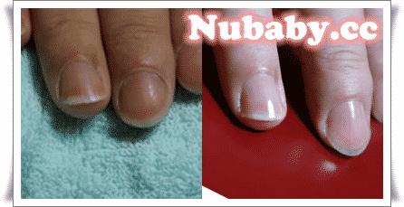 手部保養-男生乾裂的指緣與手指