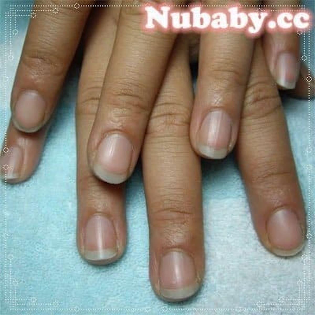 養-硬繭脫皮的手指也能變美