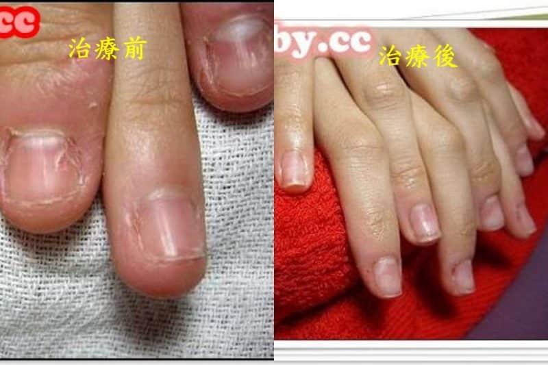 問題指甲矯正-摳咬指甲是可以矯正的