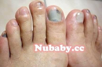 腳部保養-照顧灰指甲的足部皮膚與硬繭
