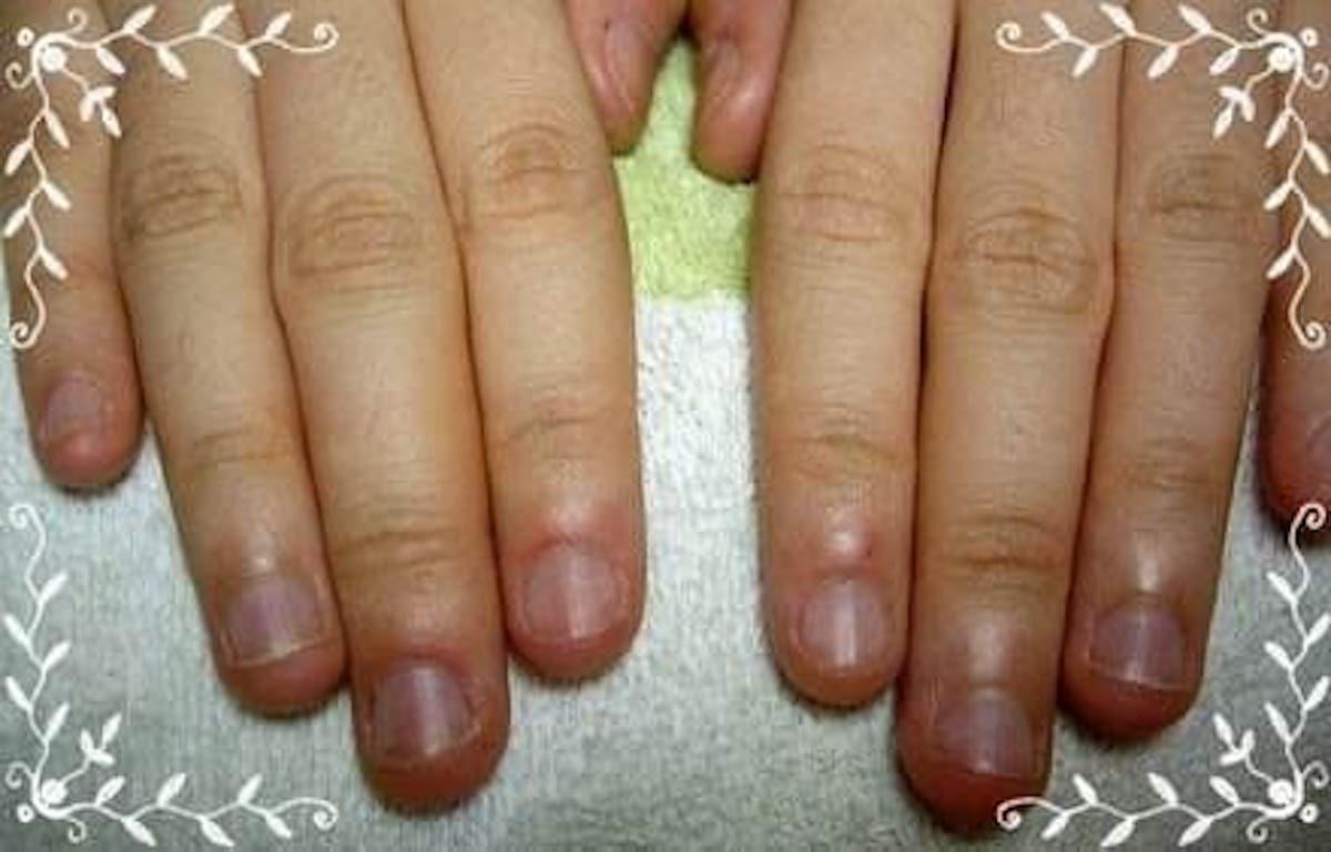指甲矯正-咬指甲也可以有法式指甲