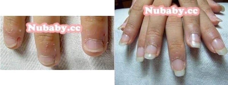 咬指甲案例-矯正成功後的藝術指甲