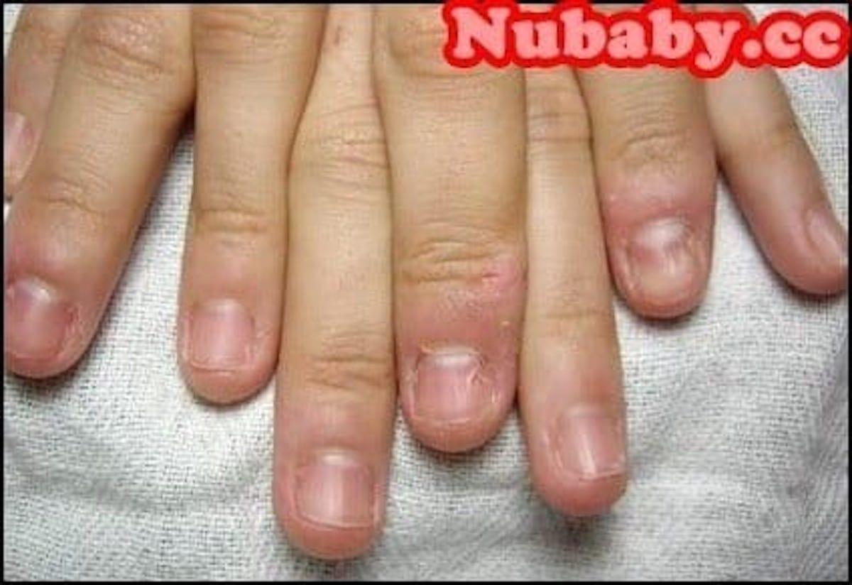 問題指甲處理-撕咬手指 指緣滿是傷口