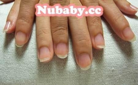 咬甲撕皮-矯正一個多月變健康的手指