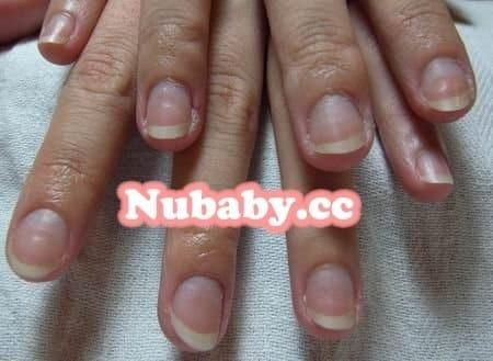 扇形指甲矯正-指甲前端形狀寬寬像扇子