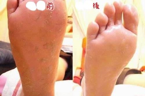 腳部飛甲矯正-高跟鞋導致 腳部指甲往上飛
