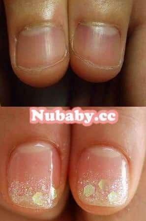 咬指甲-甲床萎縮矯正成超美超長的甲面