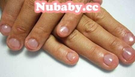 問題指甲處理-咬指甲的男生也能矯正指甲