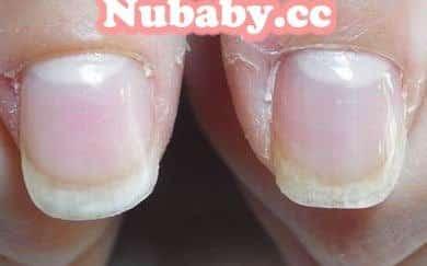 摳咬指甲矯正-年親媽媽甲床萎縮變漂亮