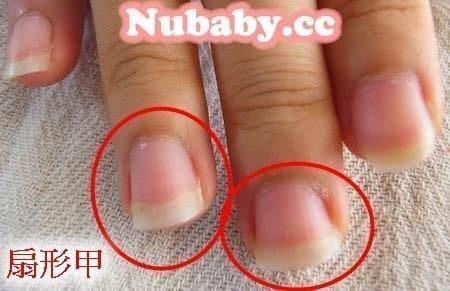 問題指甲處理-改善超級扇形甲的手指