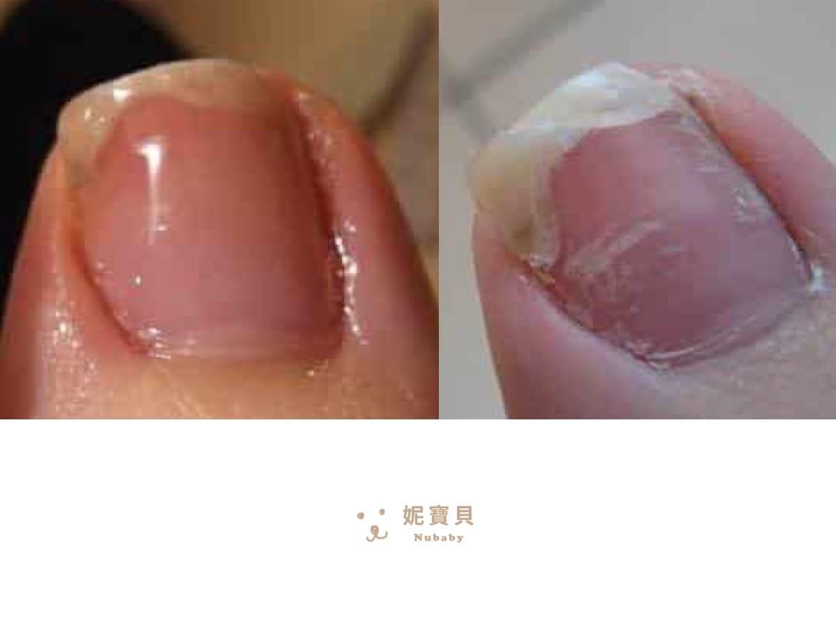 腳指甲斷裂-用凝膠指甲修補斷甲