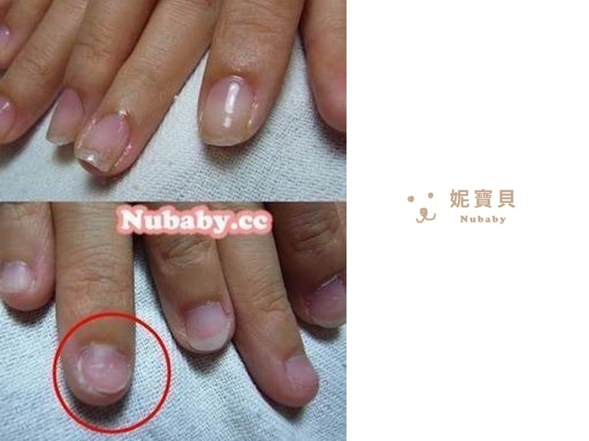 咬指甲矯正-扇形短小甲面變好的過程