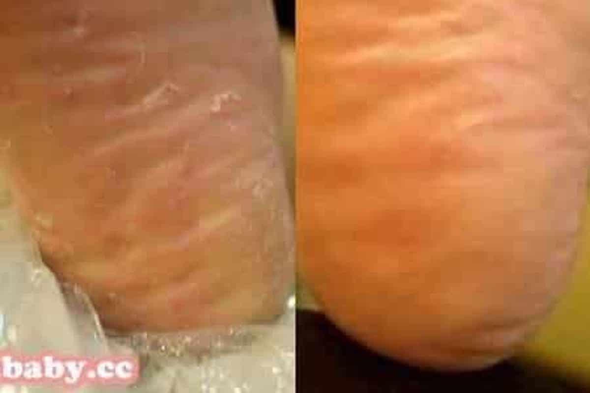 腳部保養-乾燥造成足底脫皮厚繭