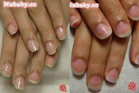 扇形指甲矯正-寬寬的扁平甲變修長