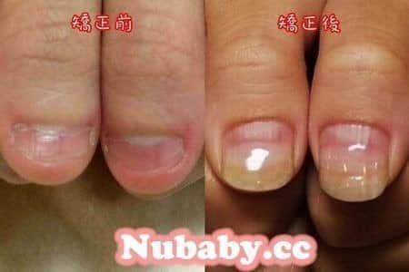 問題-拯救嚴重撕咬的手指指甲處理