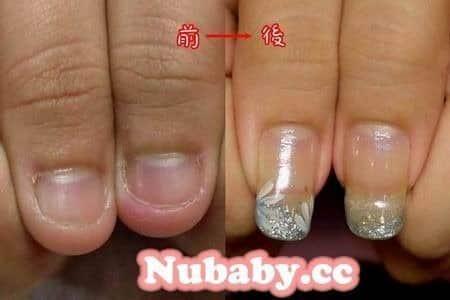 咬指甲矯正-甲床外露變超長指甲