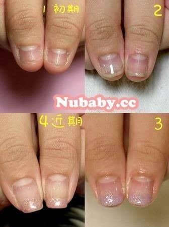 撕咬指甲矯正-嚴重飛甲與甲床萎縮