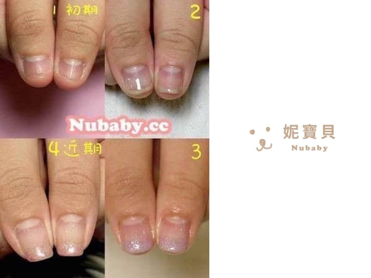 重建指甲 撕咬指甲矯正-嚴重飛甲與甲床萎縮