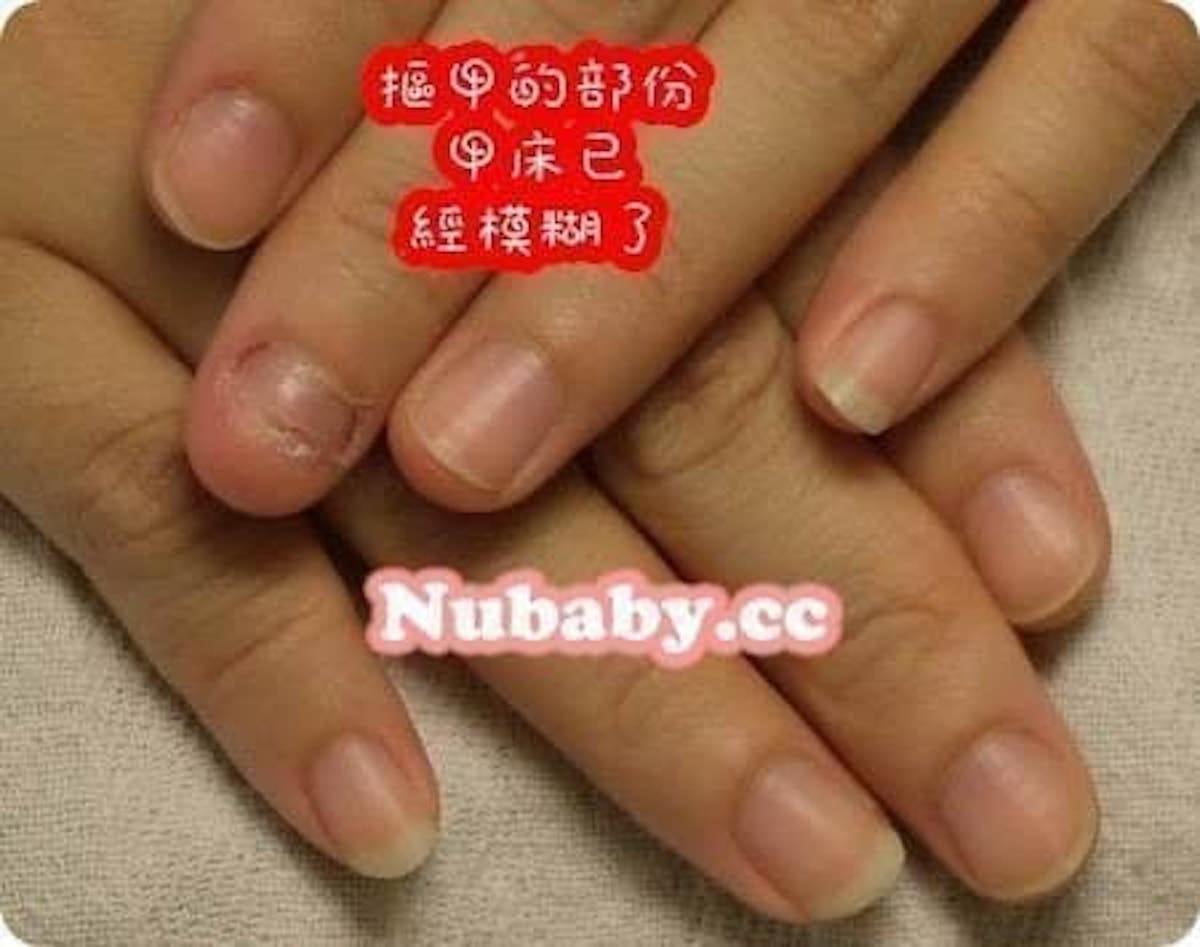 讓指甲長出來-護士嚴重的甲肉模糊 指甲矯正