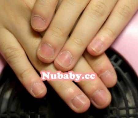 問題指甲處理-咬摳指甲到指緣發炎變形