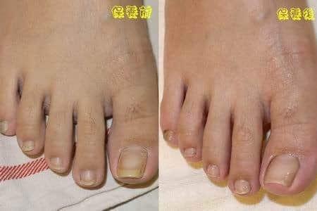 腳部保養-呵護足部太乾的蛇皮腳