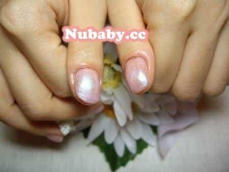 愛摳-拯救發炎紅腫變形的大拇指指甲