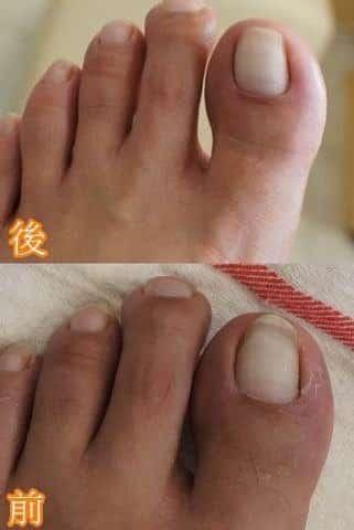 腳部保養-崁甲男生第一次的足部保養