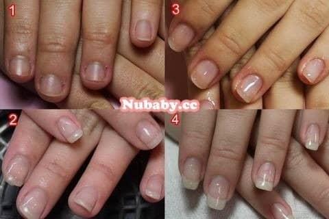 咬甲矯正-美女也該有漂亮健康的手指