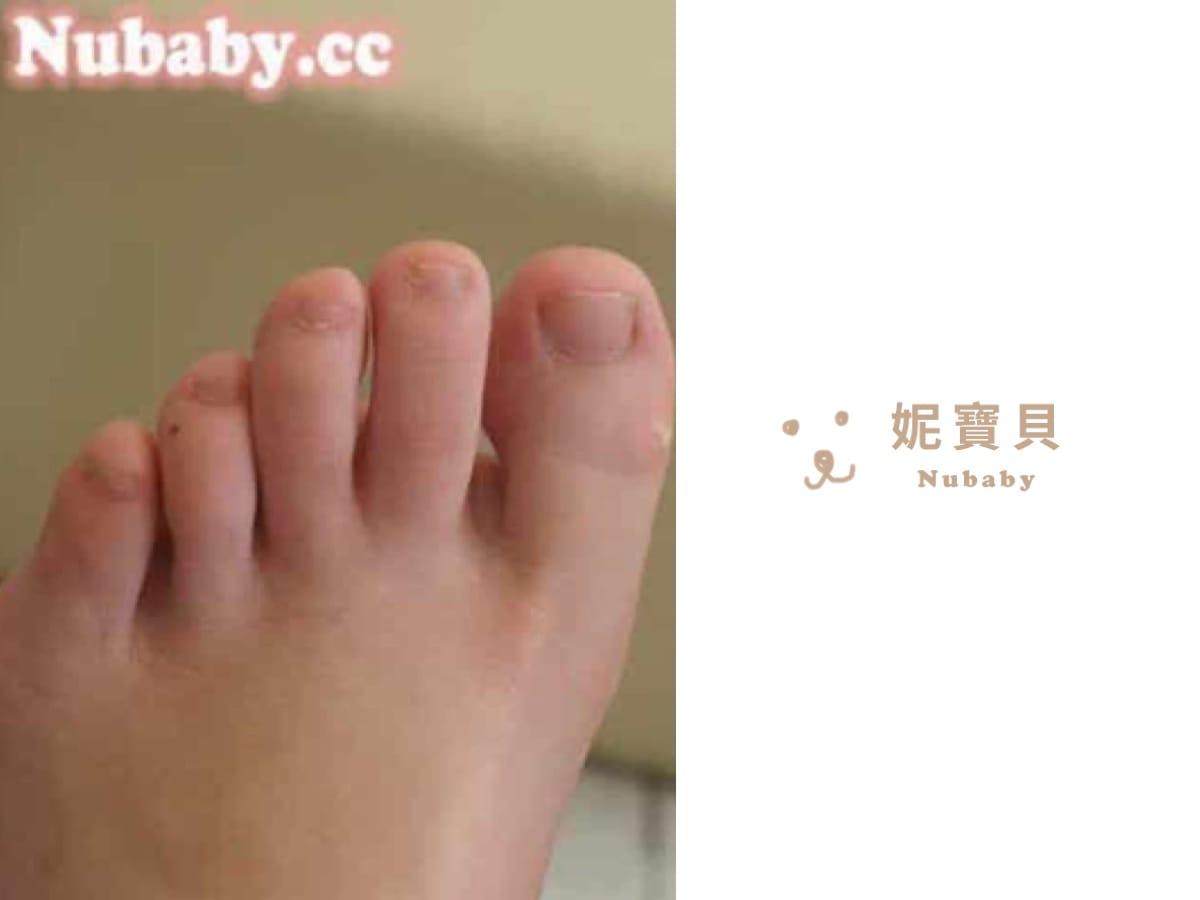 腳底厚繭-減少厚繭的腳部保養