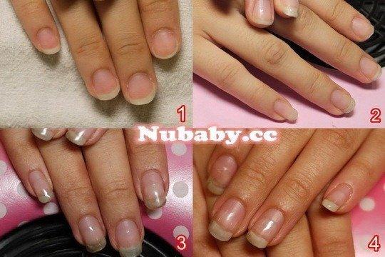 問題指甲處理-撕摳導致扇形指甲