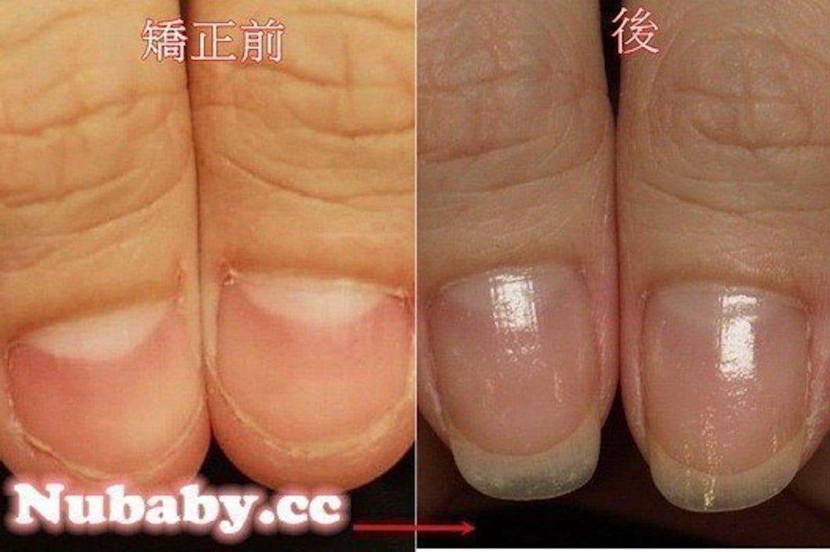 咬甲矯正-壓力大狂撕指甲與手指