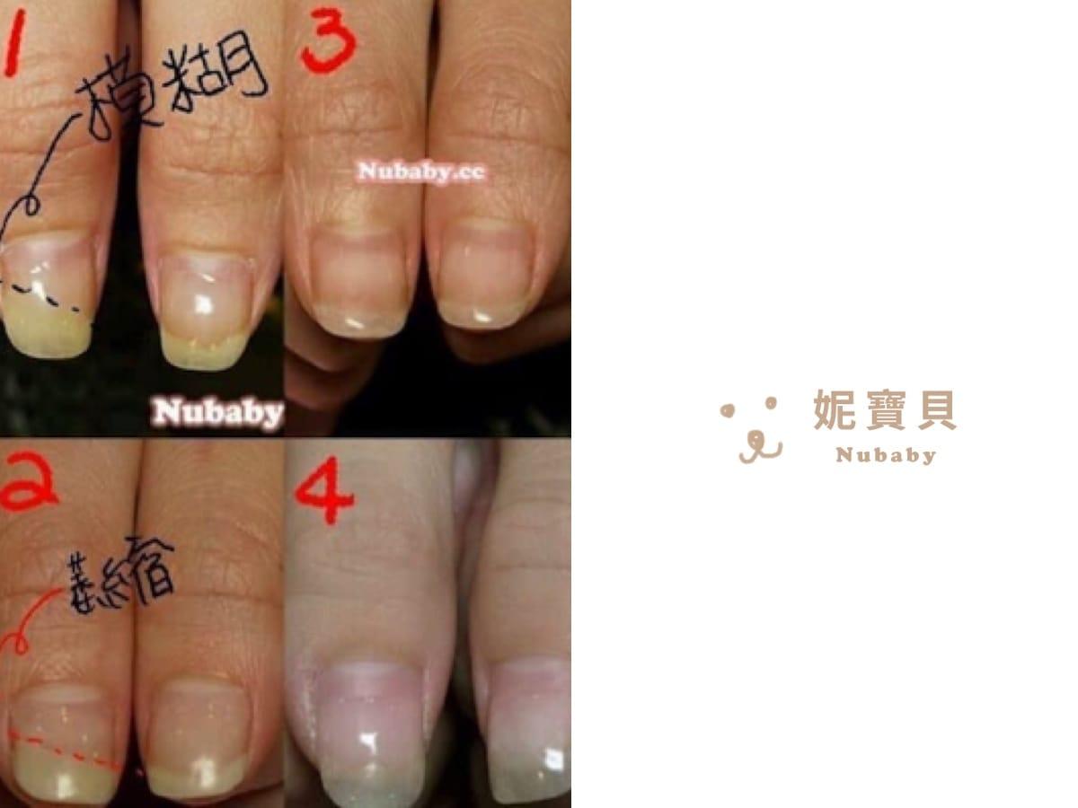 剪指甲皮 甲肉萎縮-矯正四階段