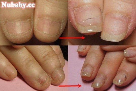 問題指甲矯正-處理摳咬造成的損傷