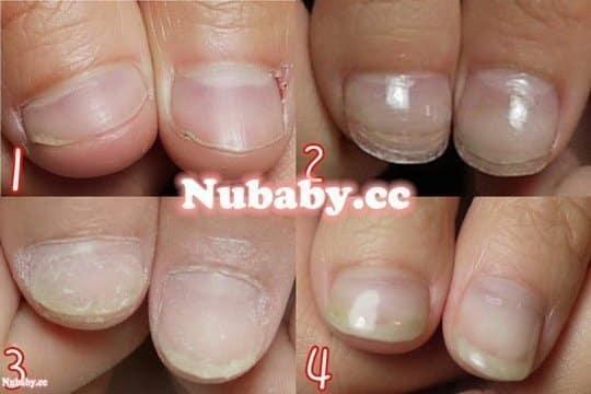 短指甲問題-指甲矯正-被摳咬的指甲成長史