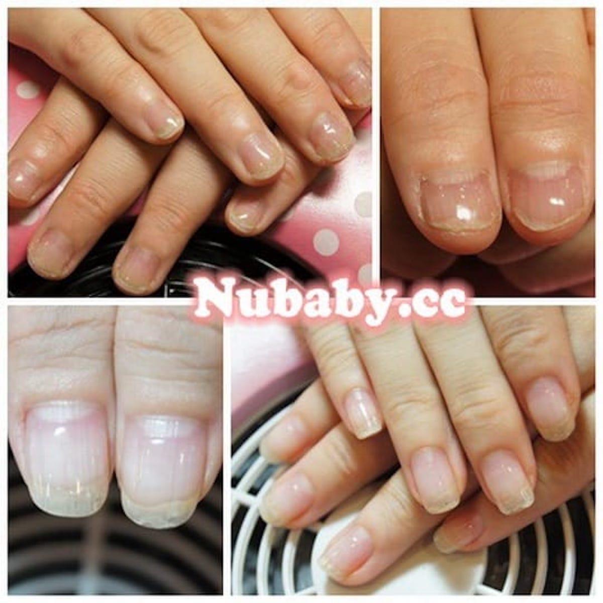 脫皮的指甲 變超美-指甲矯正