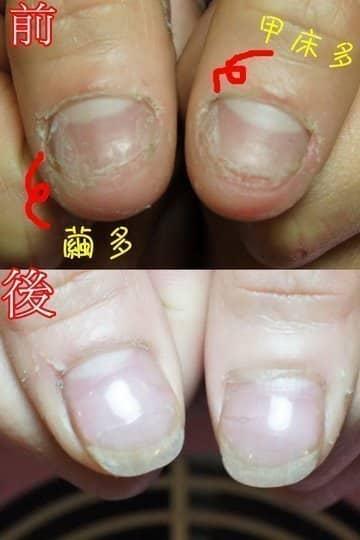 咬指甲-男生嚴重撕皮&咬指甲到流血