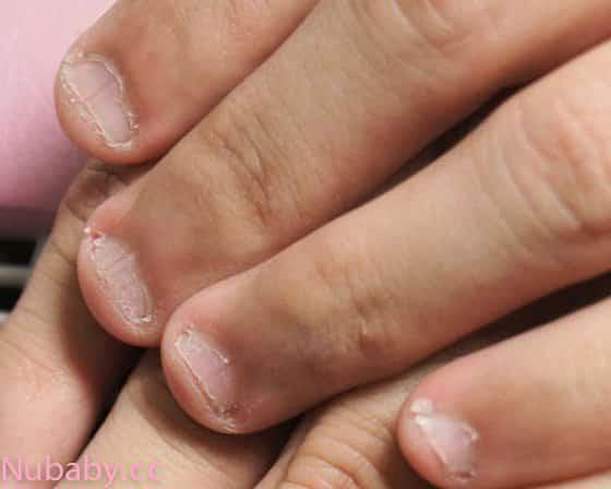 指甲肉模糊-撕皮咬手指到甲床萎縮