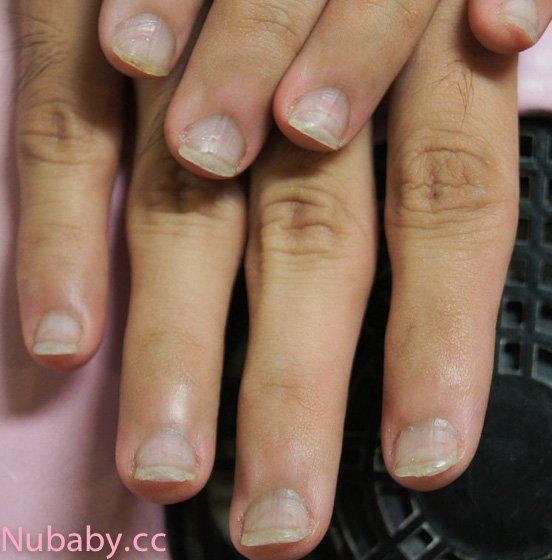 咬甲矯正-男生撕皮咬手指到甲床萎縮