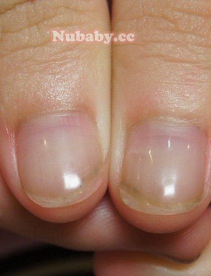 變超短指甲 的 處理-咬甲矯正