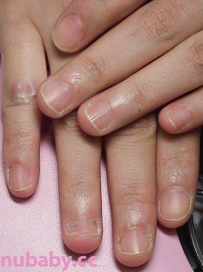 從小咬到大-咬甲矯正拯救長時間受損的指甲