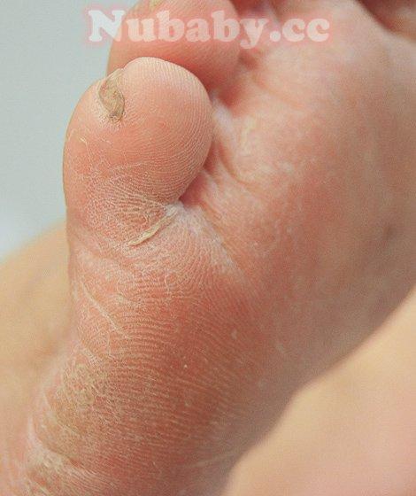 足部硬繭-腳部精油深層保養 嚴重的硬繭處理