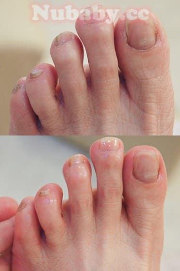 腳部精油深層保養 嚴重的硬繭處理