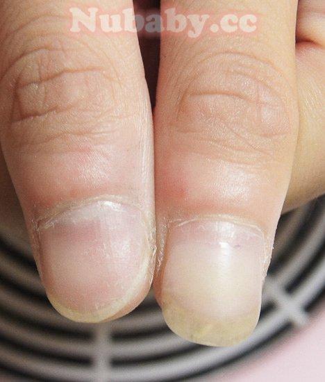 摳撕咬指甲-高中生沒有指甲的食指長出來