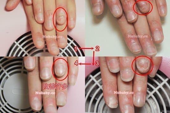 高中生摳撕咬指甲 沒有指甲的食指長出來