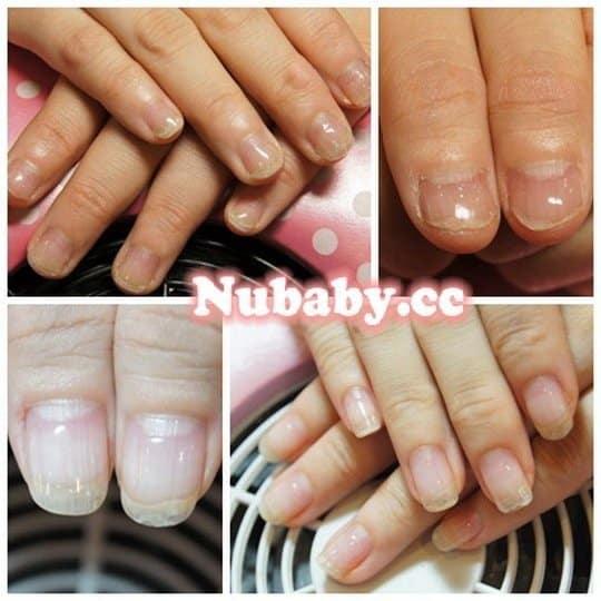 指甲矯正-咬甲到脫皮的指甲變超美