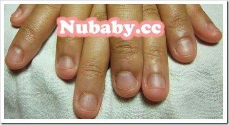 咬甲矯正-曾旅居南非的妹妹指甲變健康