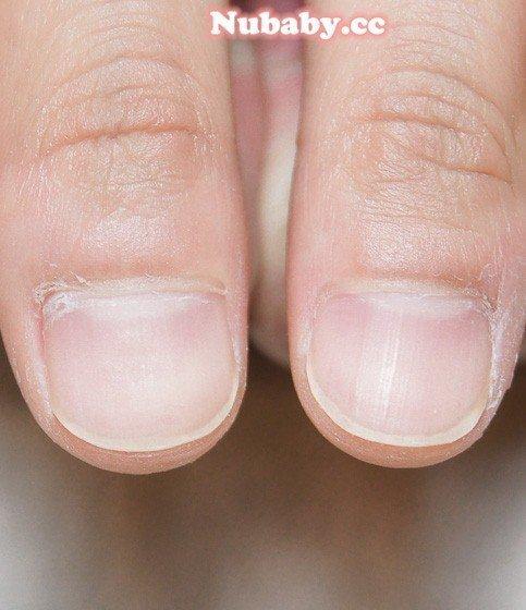 扇形/撕指甲 護士的扇型矯正