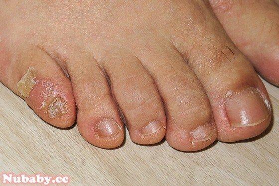 跳舞的厚繭-解決腳部厚繭 深層精油保養