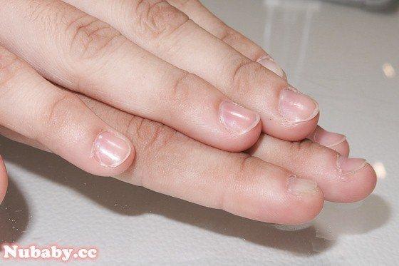 餐飲業加摳咬指甲 也能有健康的指甲